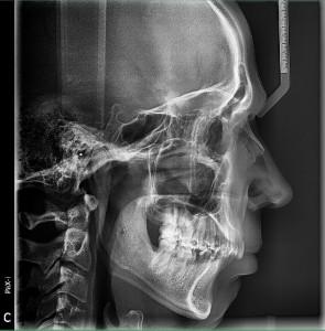 zdjecie cefalometryczne