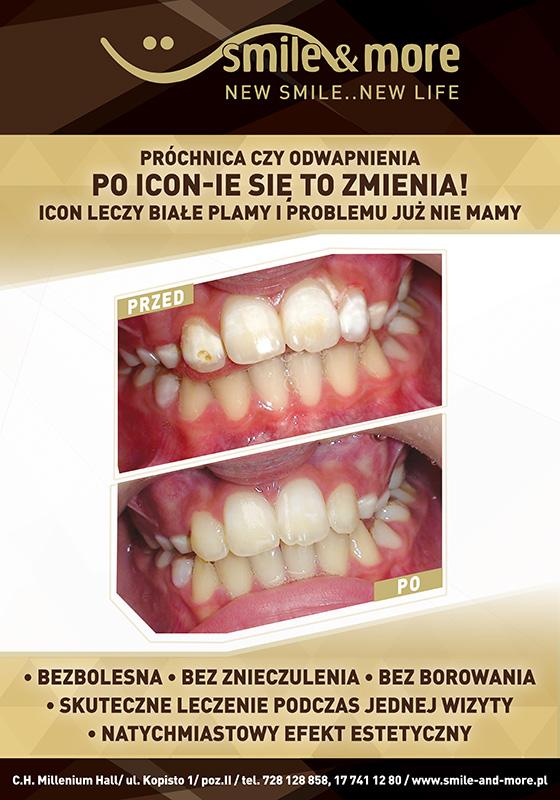 smile_plakat_70x100_icon_nowe_zeby